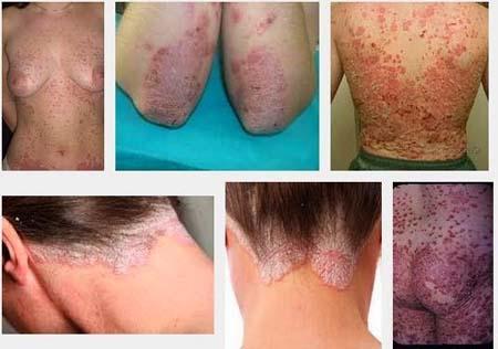 penyakit eksim gatal kulit parah