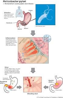 helicobacter_eng Хеликобактери гэж юу вэ?