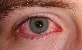 Cara mengatasi mata merah dan belekan