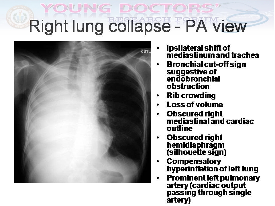 Quick Diagnosis Of The Chest X Rays Cxr Young Doctors