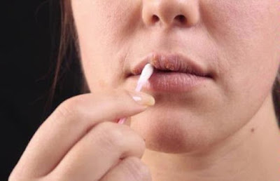 Canker sores are small ulcers in the mouth The Causes And Treatment Of Canker Sores