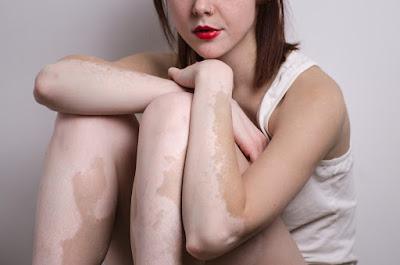 https://skincareayurveda.com/what-is-vitiligo/