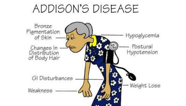 Berikut Enam Fakta Seputar Penyakit Addison Yang Jarang Diketahui
