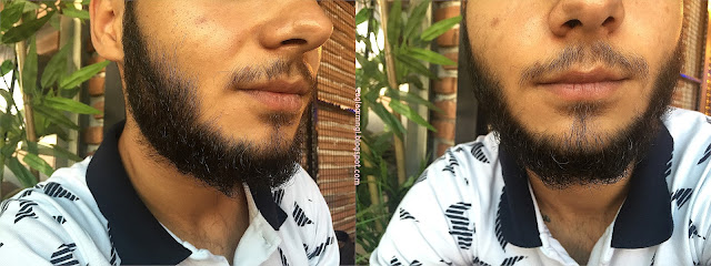 fonex-gummy-premium-sakal-bakim-seti