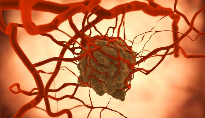 Obat Herbal Penyakit Tumor Ganas
