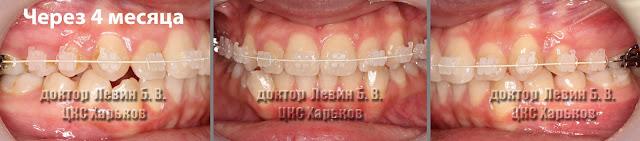 Прикусы пациента через 4 месяца лечения верхнего зубного ряда