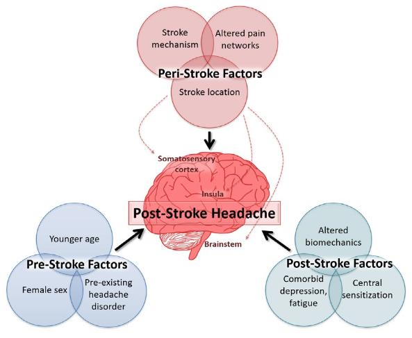図:脳卒中後のながくつづく頭痛