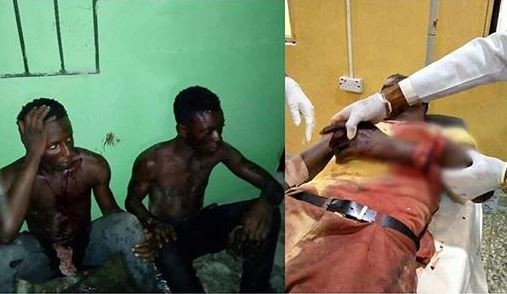 Three armed robbers arrested for chopping off youth corper's hand in Bayelsa State