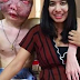 Thai Lady Stands By Her Boyfriend Even When Tumor & Cancer Has Disfigured His Face - Very Graphic