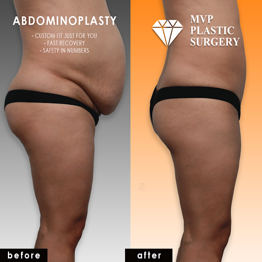 Best Abdominoplasty in Korea