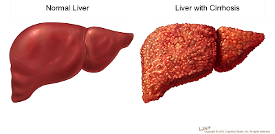 Click2cure What Is Liver Disease Most Common Liver Disease