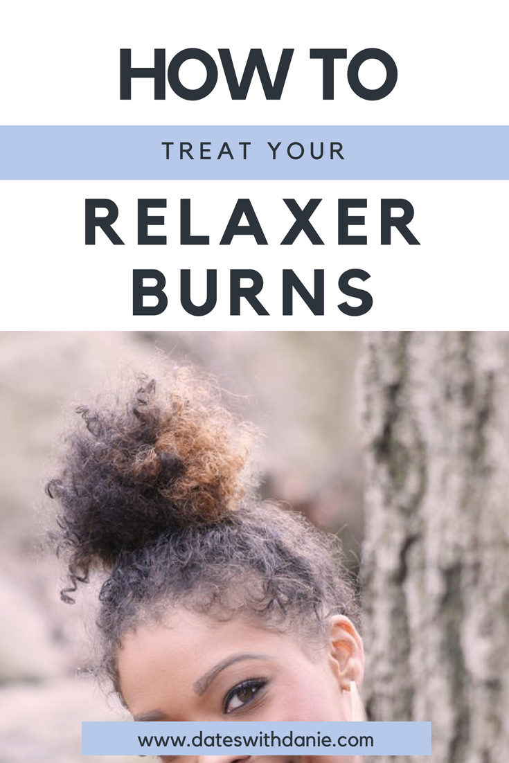 treat relaxer burns