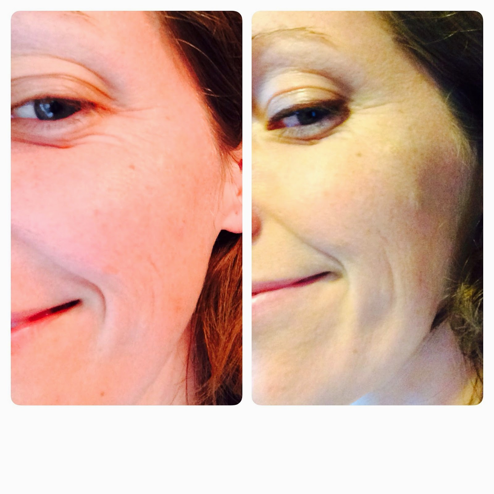 #AvonAnew express wrinkle smoother before and after