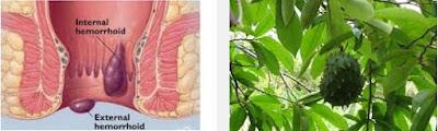 Herbal Wasir