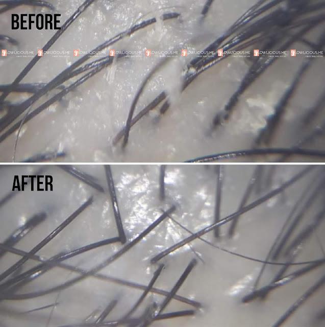 Sensasi Dingin Di Kulit Kepala Dengan Matrix Biolage Cool Therapy+++