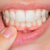 9 Symptoms of Gum Diseases and Treatments! Necrotizing Gingivitis