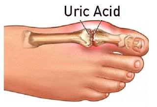 Uric Acid Treatment