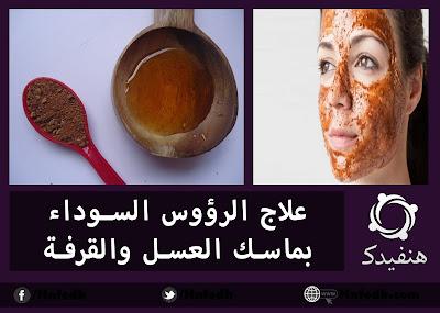 وصفة العسل والقرفة لعلاج الرؤوس السوداء