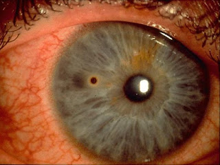 Corneal Infiltrates Images, Symptoms, Causes, Treatment, Healing Time