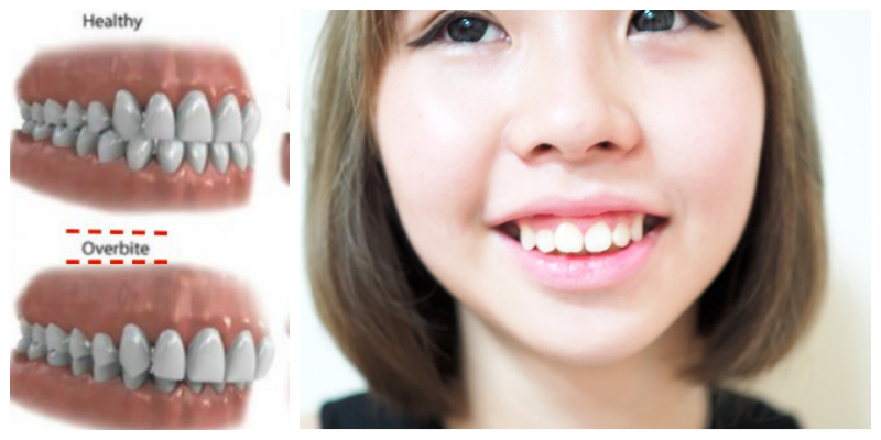 MY BRACES STORY #6: Take off braces, Retainer Mold ...