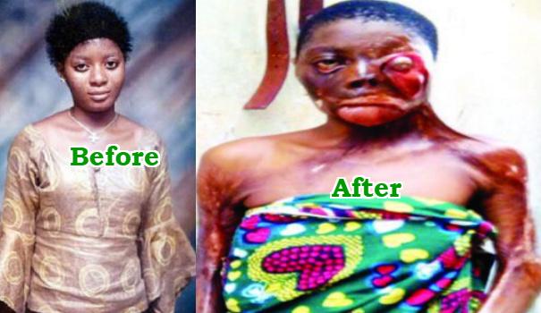 epileptic woman falls into boiling oil ejigbo lagos
