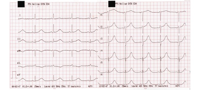ECG Rhythms: The Wide QRS Complex Tachycardia Case