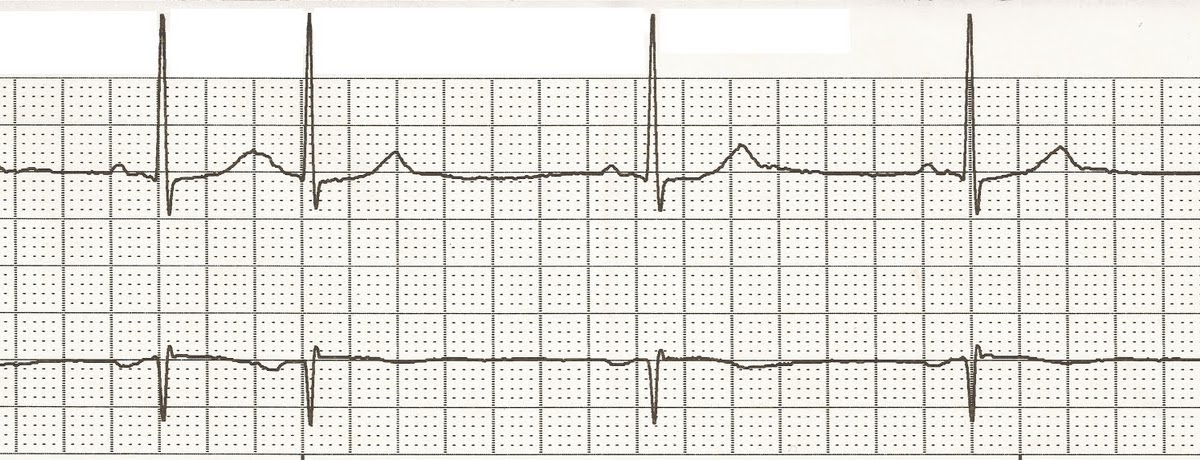 Float Nurse: EKG Rhythm Strips 26: Ectopic beats