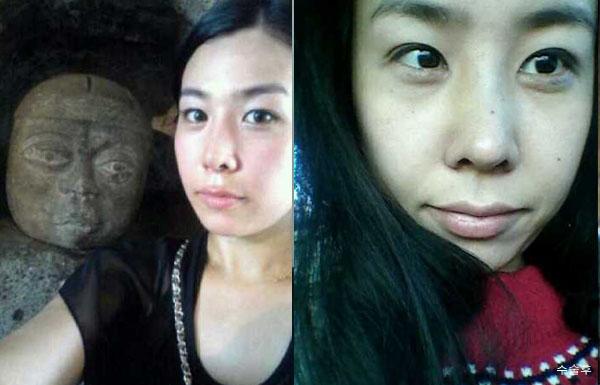 짱이뻐! - Korea Plastic Surgery Made Me 120% Satisfied Of My Side Profile