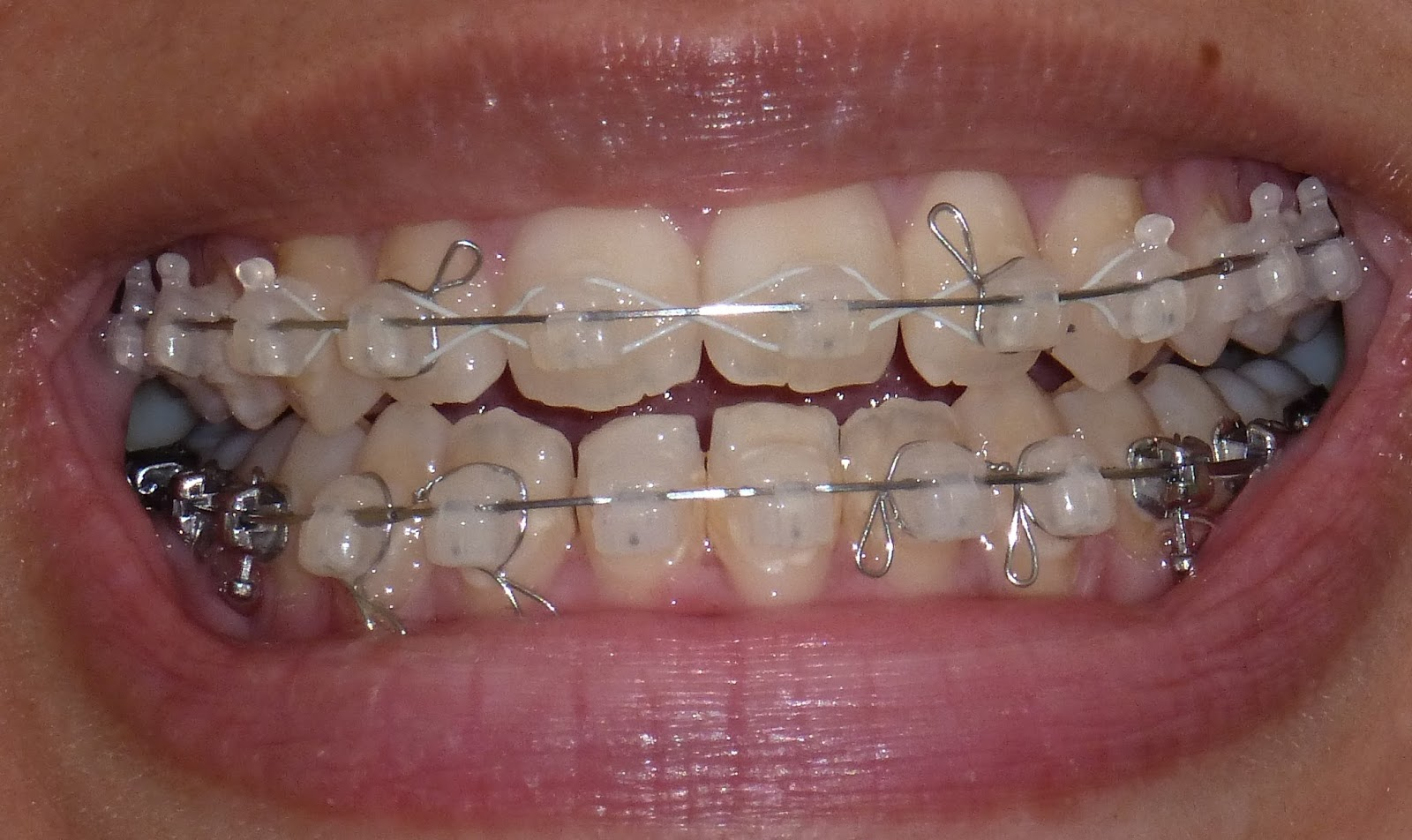 My Damon Clear Braces
