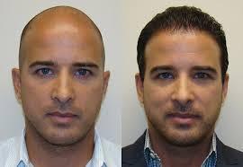 saç ekimi öncesi ve sonrası foto 8