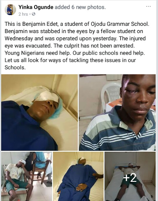 Photos: Student of Ojodu Grammar School stabbed in the eye by fellow student