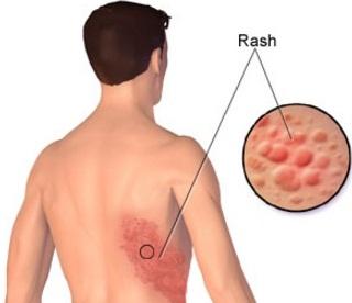 Hindari Stress karena bisa berakibat terkena Penyakit Herpes