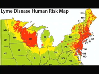 Lyme Disease Occurs In Europe And Asia As Well As North America Always Spread By Ticks In The Genus Ixodes Over The Last Decade About 20 000 30 000 U S