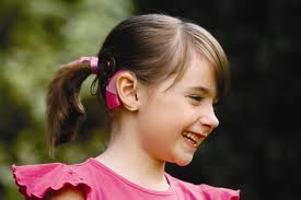 Cochlear implant pros and cons