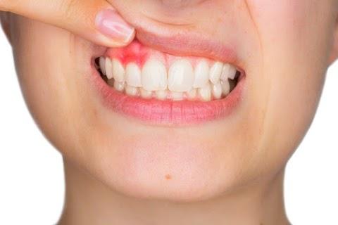 Egyre többen szenvednek fogínybetegségben