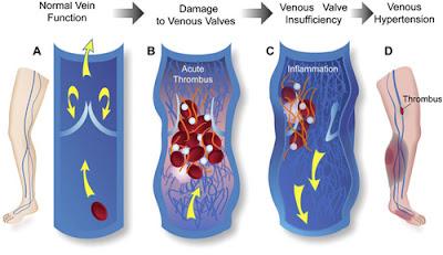 As veias com trombose sofrem um processo inflamatório intenso que resulta no dano às suas válvulas