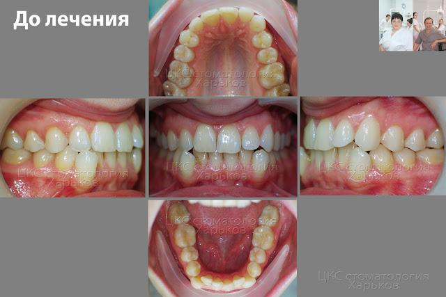 Прикус до ортодонтического лечения