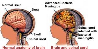 Kenalilah Penyakit Meningitis