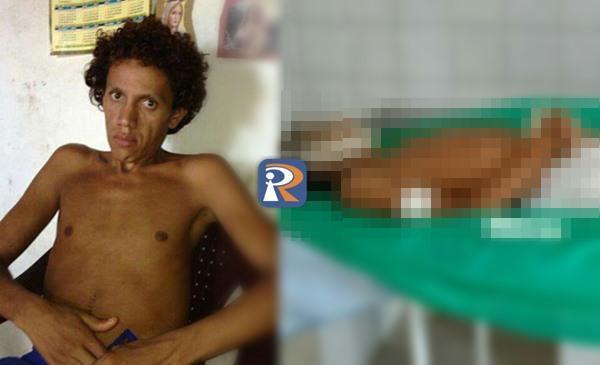 Homem morre após espancamento em Piripiri; amigos suspeitam de homofobia