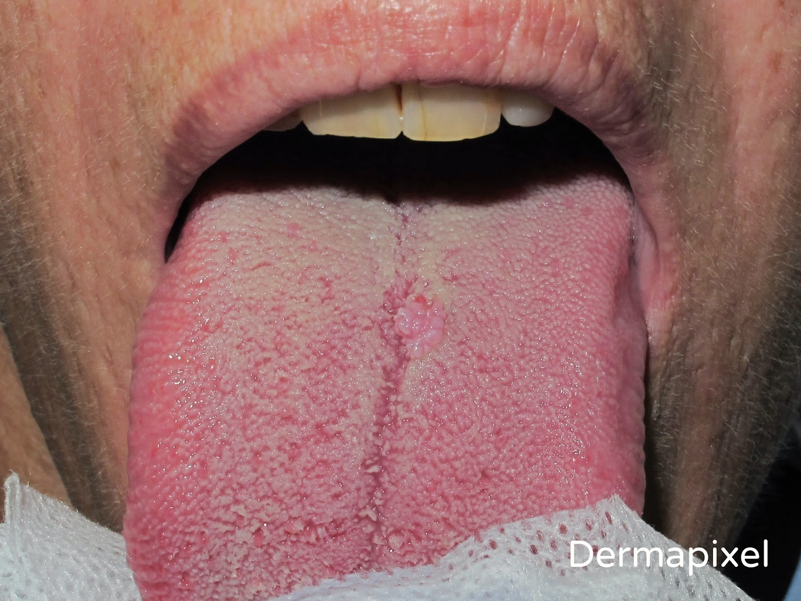 Y lengua en verrugas garganta la