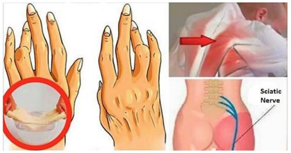 Miracle Oil for Pain Relief Of Your Arthritis And Sciatica