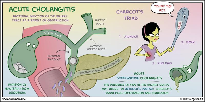 Cara Alami Menyembuhkan Cholangitis / Infeksi Saluran Empedu dengan Obat Herbal Terbaik