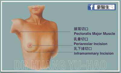 高雄隆乳手術切口