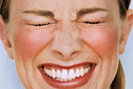 acne vermelhidao