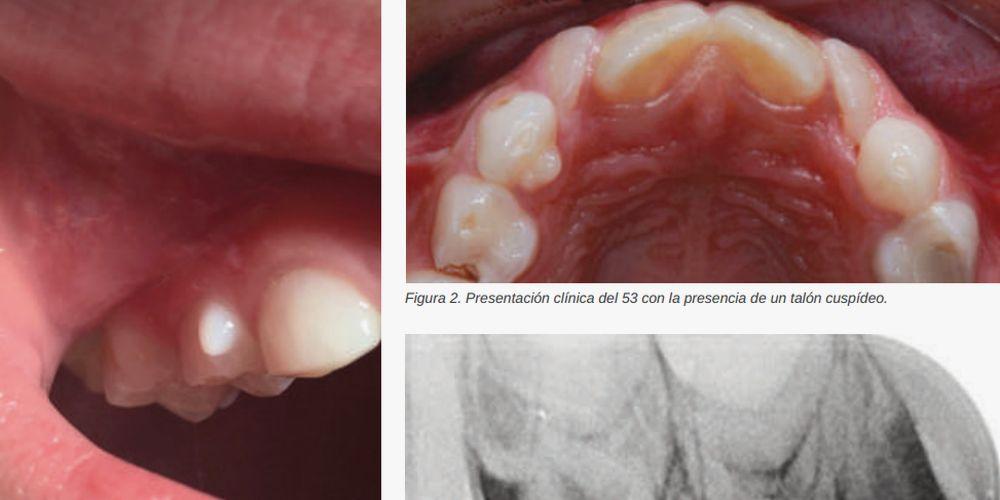 Patología Dental