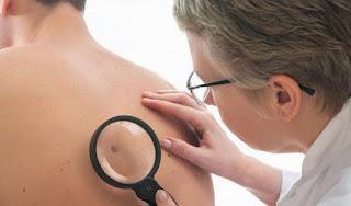Mengenal Kanker Kulit Melanoma dan Tandanya