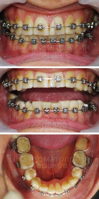 Смена ортодонта в ходе лечения