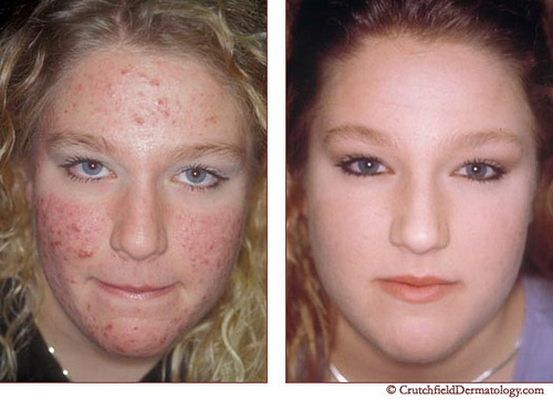Pantothenic Acid Acne Before After Pictures