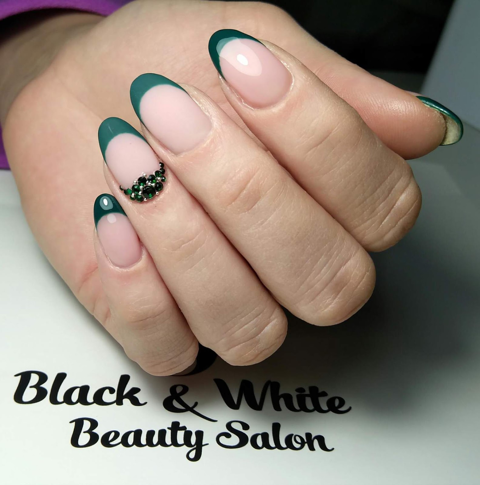 Black & White Nails Art Disign: Nail Patella Syndrome Facts