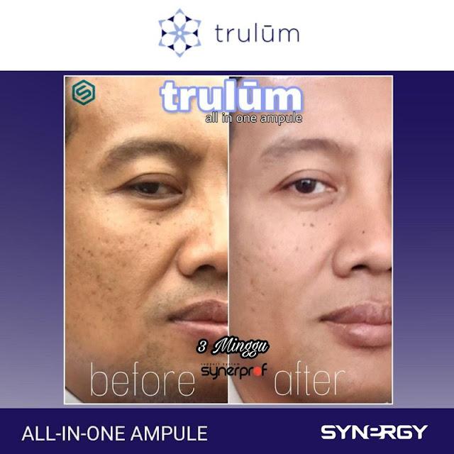 Jual Serum Penghilang Keriput Trulum Skincare Sukajadi